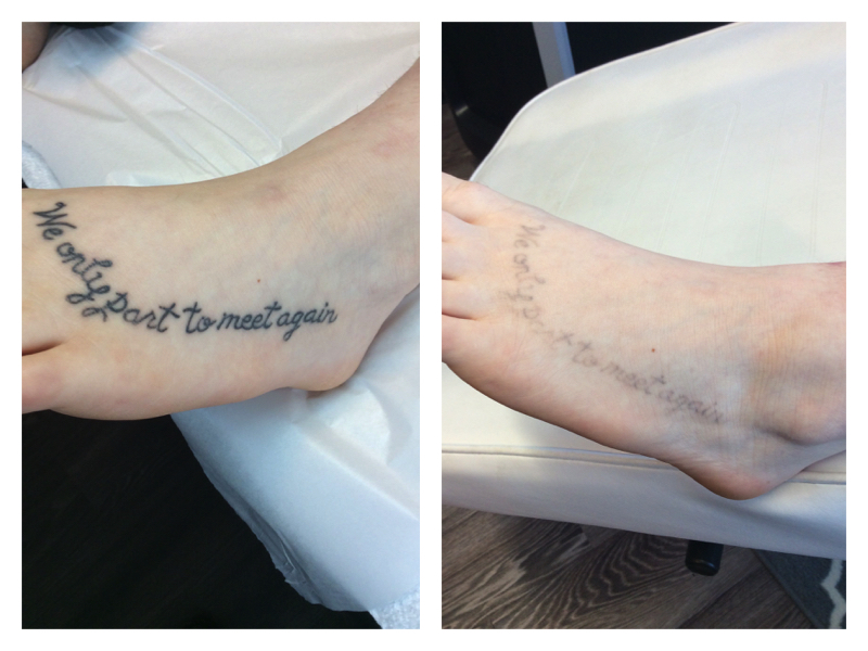 Before After Tattoo Foot