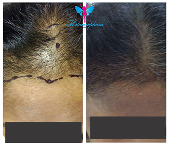 Hair Transplant Before After 3