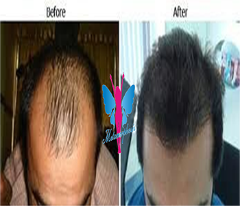 Hair Transplant Before After 5