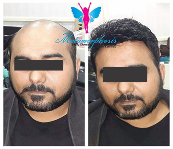 Hair Replacement Before & After 2