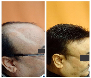 Hair Replacement Before & After 3