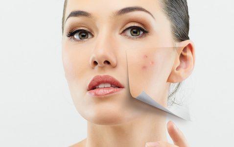 acne-image